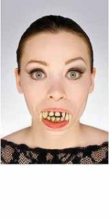 Vampire Teeth Upper Lower Decayed Pointed Dentures